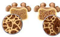 骨胶原蛋白调理改善骨骼疾病的功能