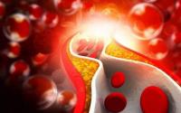 四种有效降血脂的特效方法,特别是第四个太神奇!