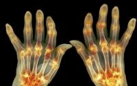 痛风治疗方法分享,干细胞疗法对痛风的病人治疗效果怎么样