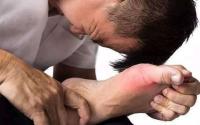 什么是痛风,怎么治疗效果最好?