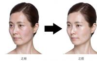 胶原蛋白在身体中的分布_不仅限于皮肤