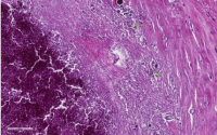 补胶原蛋白对肺脏效果好吗?