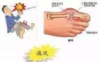 痛风石能消除吗?痛风吃小分子肽有用吗?肽对痛风的作用!