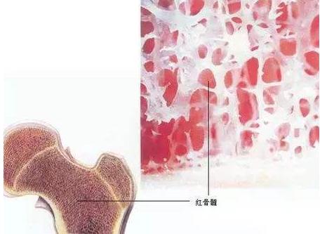 牛骨髓补骨髓能治疗糖尿病,是骗人的吗?