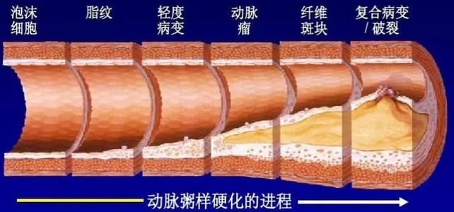 动脉粥样硬化2.jpg