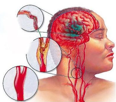 脑梗死和脑血栓后遗症吃至宝多肽地龙蛋白纳豆粉多才能看到效果