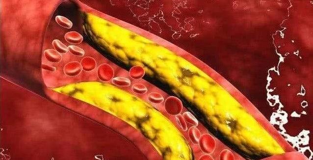 高血脂有什么危害?吃什么食品最能降血脂?