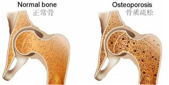 干细胞能增加骨密度吗.png