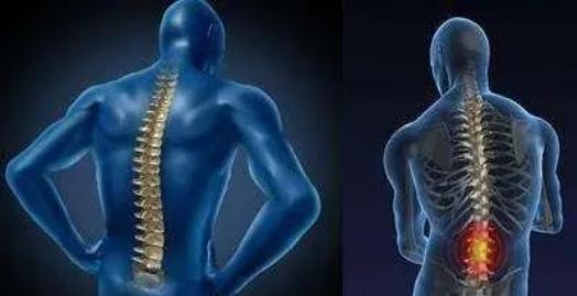 强直性脊柱炎怎么治疗效果好.png