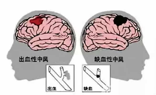 那么小分子肽对脑中风后遗症起到什么样的作用呢?