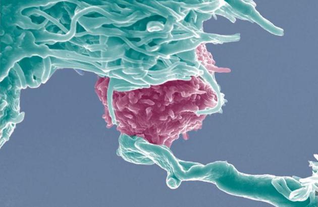 免疫细胞的作用.png