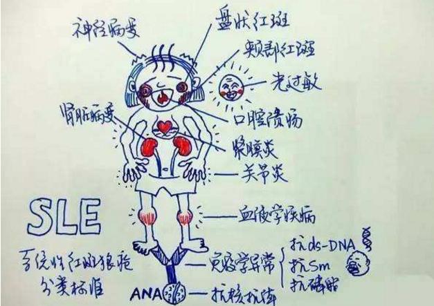 干细胞能治疗系统性红斑狼疮吗.png