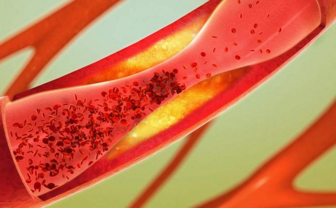 苦瓜肽对三高效果优秀有效预防冠心病高血压脑卒中