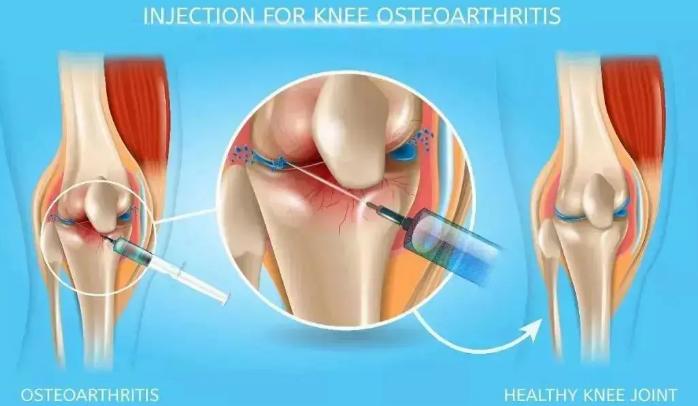 干细胞注射对髌骨损伤效果怎么样.png