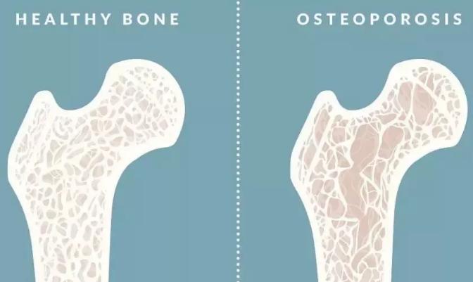 小分子肽能治疗骨质疏松吗.png