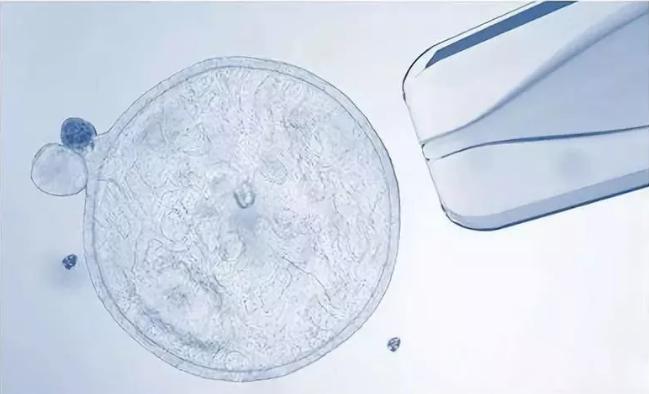 医疗前沿:中国干细胞临床治疗时代的开始