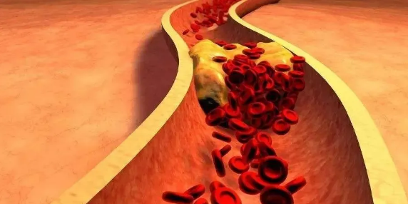 小分子肽与腿部供血不足.png
