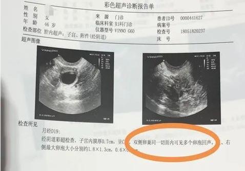 干细胞治疗不孕不育是不是骗人的.png