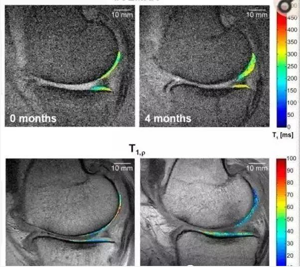 干细胞能修复软骨吗.png