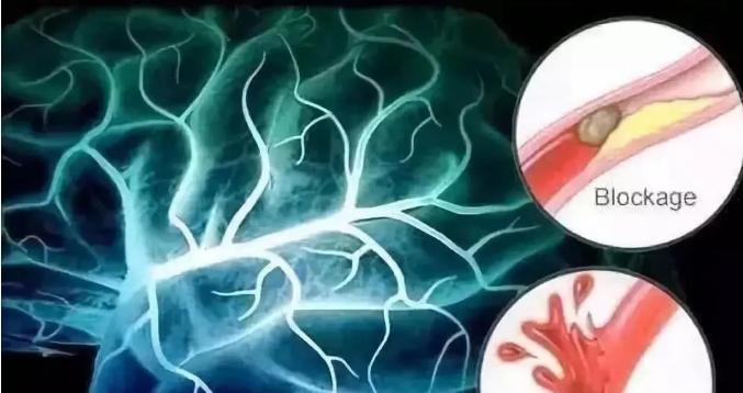 干细胞治疗脑出血效果好吗.png