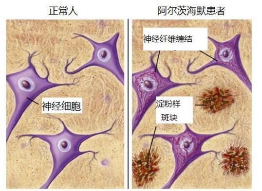 干细胞注射能治疗老年痴呆吗.png