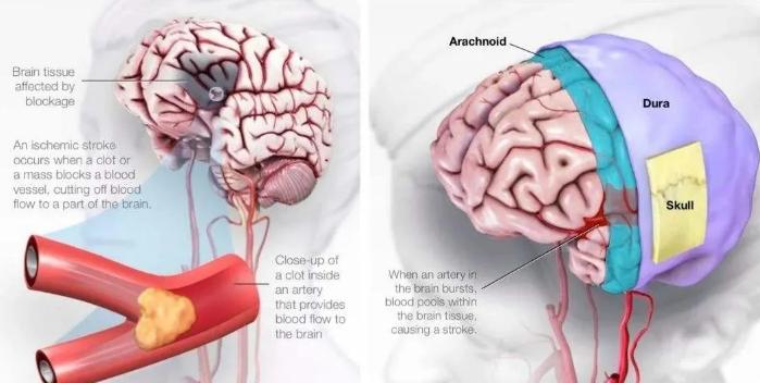 干细胞疗法对缺血性脑卒中后遗症的治疗效果