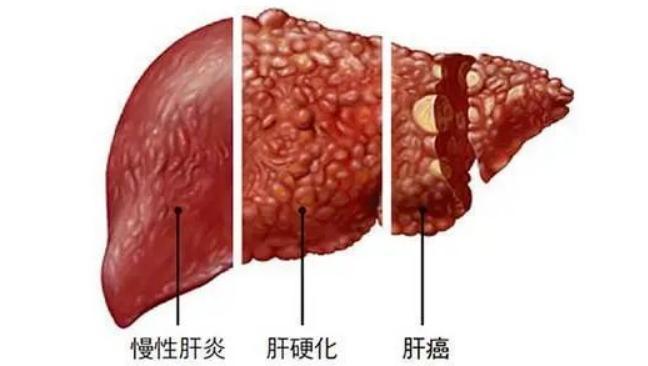 什么是肝硬化?干细胞在肝硬化治疗中的应用实况