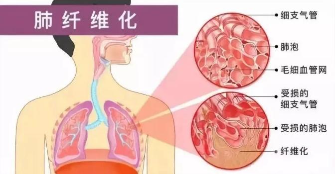 干细胞疗法与肺纤维化