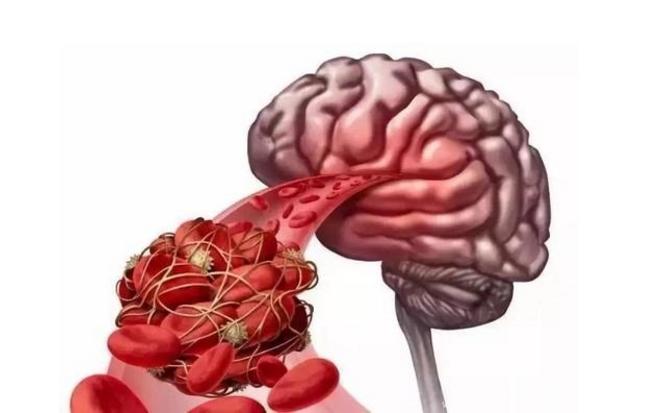 脑血栓.png