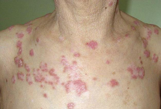 间充质干细胞治疗系统性红斑狼疮优点