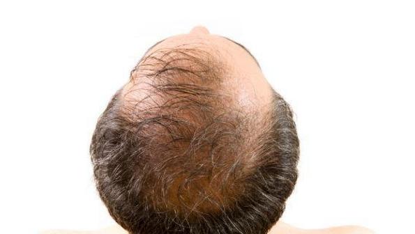 干细胞治疗长期脱发效果怎么样,能不能让毛发再生
