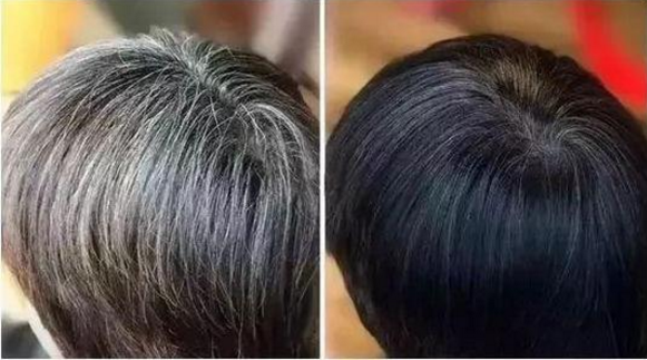 苣肽对头发变黑效果好吗.png