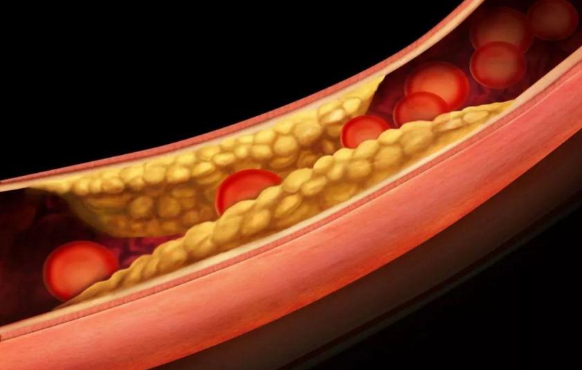 高脂血症有什么危害,生物活性肽对高脂血症的作用与效果