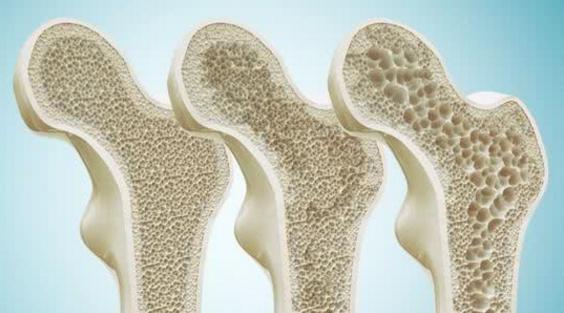 小分子肽与增加骨密度.png
