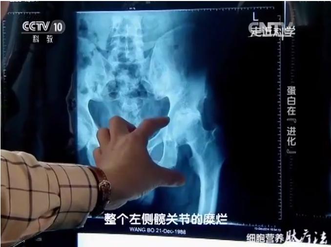 股骨头坏死病人服用小分子肽好吗,肽对骨骼有什么营养作用